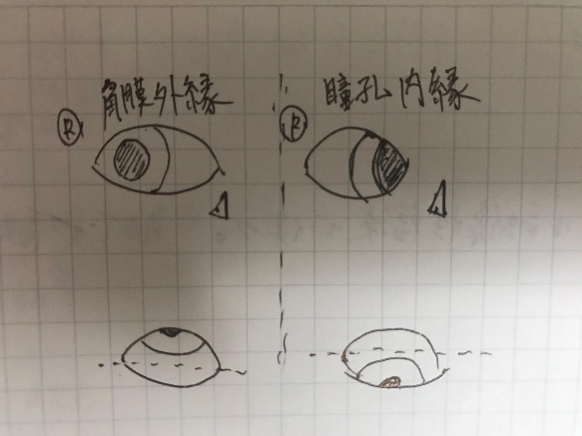 正常 値 瞳孔
